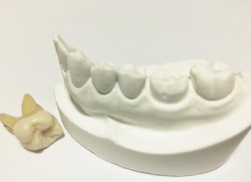 義父の入れ歯事件