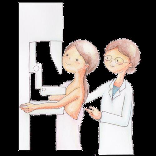 乳がん予防